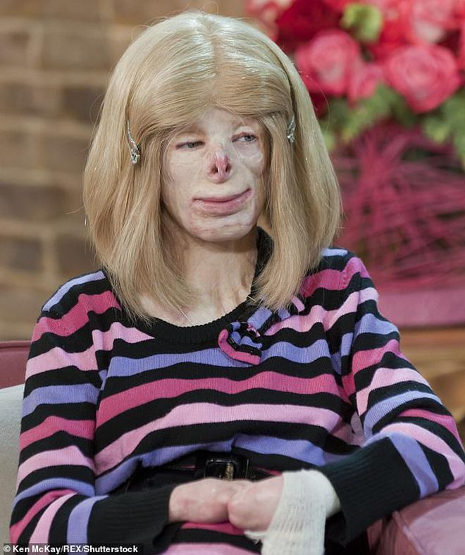 Cô bé từng bỏng nặng đến biến dạng, cứu hỏa nhìn cứ ngỡ là búp bê nhựa đen gây bất ngờ với diện mạo và cuộc sống hiện tại - Ảnh 8.