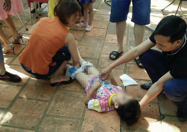 Bác sĩ BV Nhi Trung ương: Cách sơ cứu khi trẻ bị ngã, 3 điều tuyệt đối không được làm vì gây nguy hiểm cho trẻ - Ảnh 1.