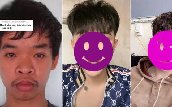 Đi xin việc bị chế giễu ngoại hình, chàng trai Việt đi thẩm mỹ và được lên hẳn báo Singapore