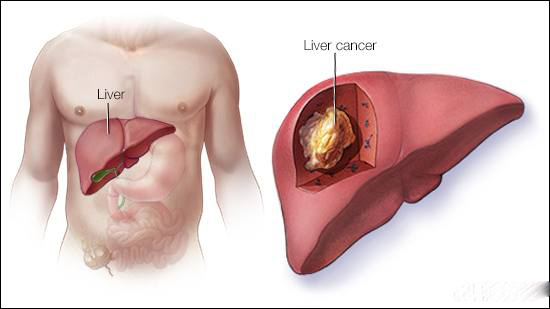 Ung thư gan thường tấn công 4 kiểu người, mong rằng bạn không nằm trong số này - Ảnh 3.