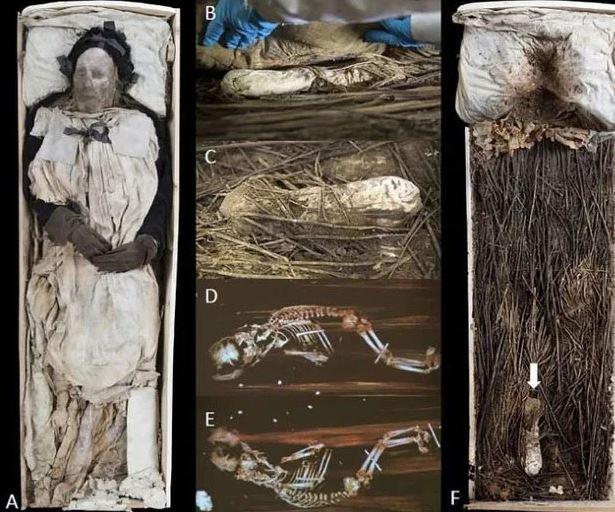 Bí ẩn bào thai giấu giữa 2 chân xác ướp vị giám mục ở thế kỷ 17 - Ảnh 2.
