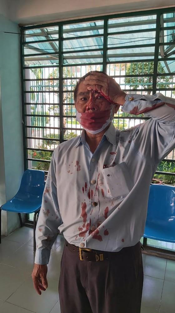 Xe ô tô của cán bộ cơ sở cai nghiện Bình Triệu bị đánh trong cuộc họp bị tạt sơn - Ảnh 1.
