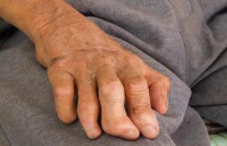 Bí mật đánh thắng căn bệnh truyền nhiễm kéo dài hơn 1.400 năm, bệnh nhân bị xã hội xa lánh, ruồng bỏ - Ảnh 1.