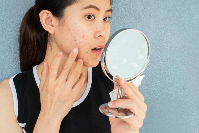GS.TS da liễu: Thận trọng với 4 cách làm trắng da phổ biến này, vừa hỏng mặt, vừa hại thân - Ảnh 4.