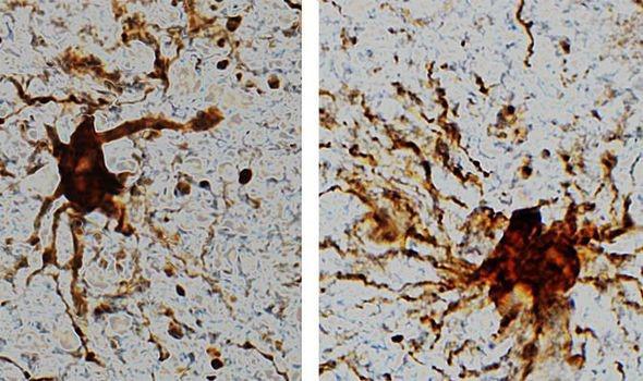 """Phát hiện sốc: """"Gen xác sống"""" xuất hiện trong não bộ của con người? - Ảnh 1."""