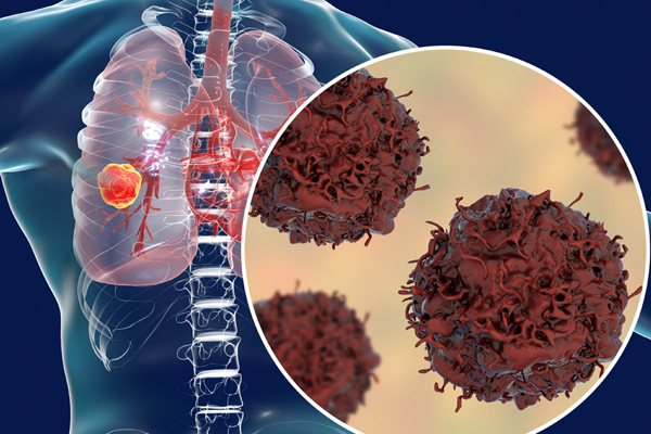 75% ung thư phổi không sớm phát hiện được, vì sao? - Ảnh 1.