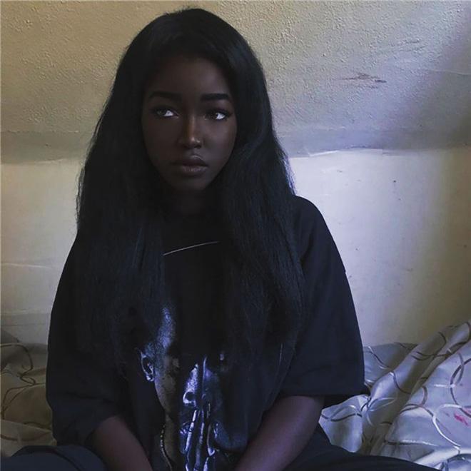 8 người sinh ra với màu da lạ kỳ chẳng giống ai nhưng lại đẹp đến mê hoặc: Từ búp bê Barbie đen đến cô gái bạch tạng đẹp nhất thế giới - Ảnh 16.