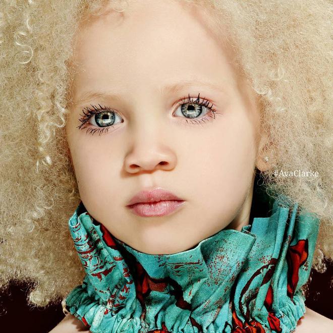 8 người sinh ra với màu da lạ kỳ chẳng giống ai nhưng lại đẹp đến mê hoặc: Từ búp bê Barbie đen đến cô gái bạch tạng đẹp nhất thế giới - Ảnh 9.