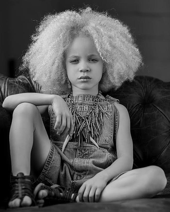 8 người sinh ra với màu da lạ kỳ chẳng giống ai nhưng lại đẹp đến mê hoặc: Từ búp bê Barbie đen đến cô gái bạch tạng đẹp nhất thế giới - Ảnh 10.