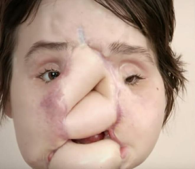 Nổ súng vào mặt tự tử nhưng bất thành, cô gái xinh đẹp khiến khuôn mặt mình bị phá huỷ và diện mạo sau 6 năm gây ngỡ ngàng - Ảnh 4.