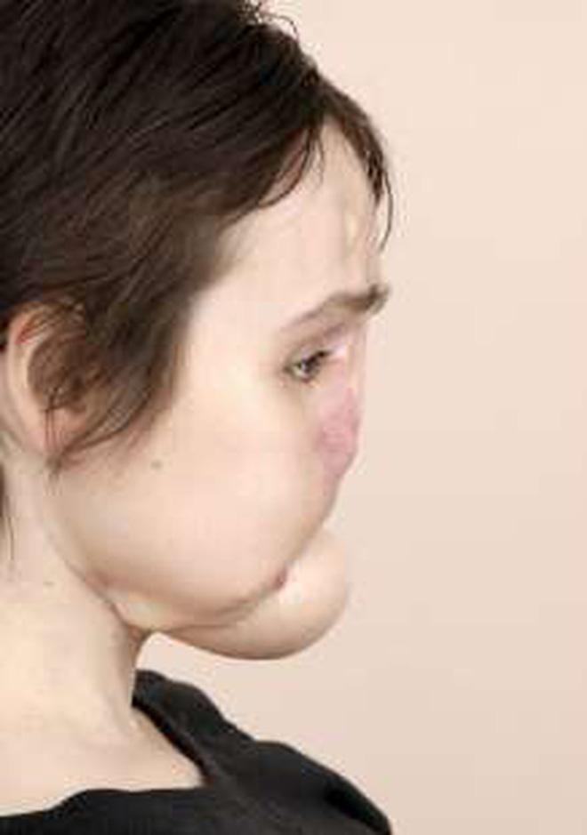 Nổ súng vào mặt tự tử nhưng bất thành, cô gái xinh đẹp khiến khuôn mặt mình bị phá huỷ và diện mạo sau 6 năm gây ngỡ ngàng - Ảnh 5.