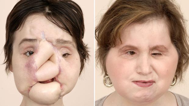 Nổ súng vào mặt tự tử nhưng bất thành, cô gái xinh đẹp khiến khuôn mặt mình bị phá huỷ và diện mạo sau 6 năm gây ngỡ ngàng - Ảnh 8.