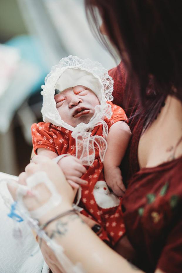 Bác sĩ thông báo con chào đời sẽ không có não và không sống được quá 1 giờ, thai phụ quyết giữ con với lý do khiến mọi người không cầm được nước mắt - Ảnh 6.