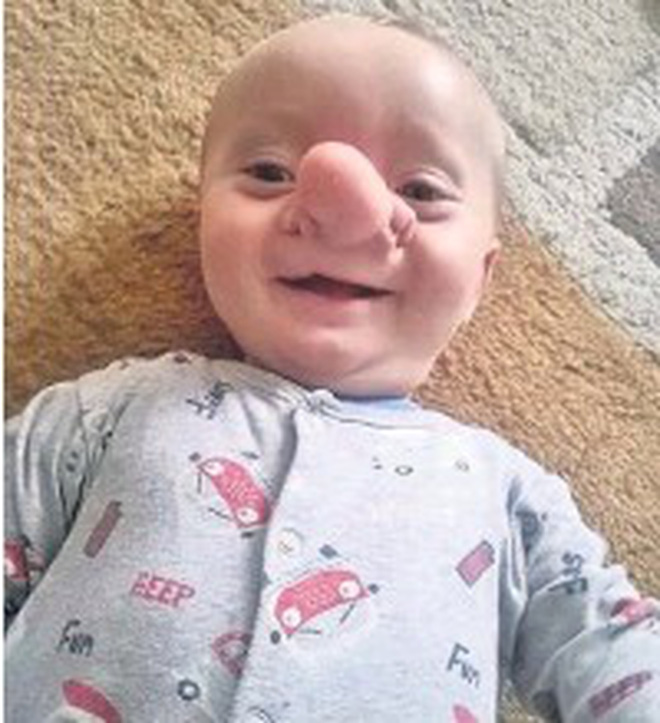 """Cậu bé Pinocchio đời thực"""" sinh ra với chiếc mũi to dị dạng khiến bố mẹ cũng sốc, gây bất ngờ với diện mạo sau ít năm - Ảnh 5."""