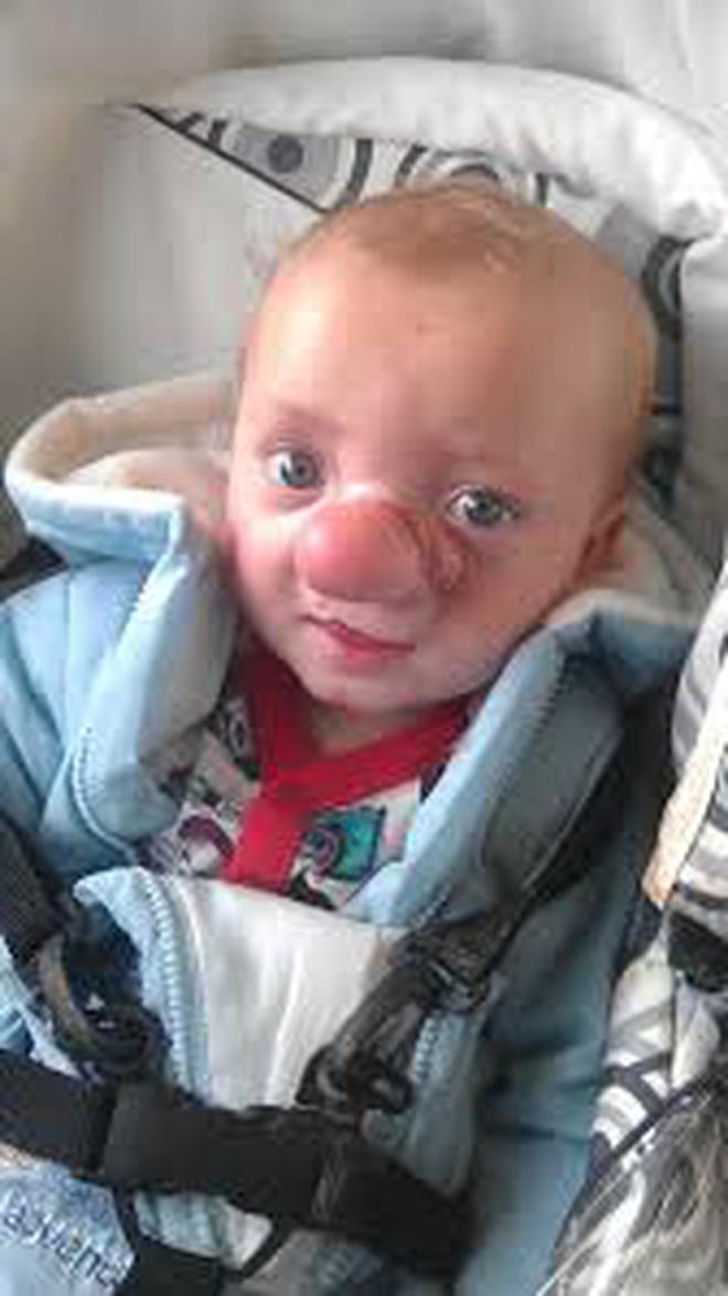"""Cậu bé Pinocchio đời thực"""" sinh ra với chiếc mũi to dị dạng khiến bố mẹ cũng sốc, gây bất ngờ với diện mạo sau ít năm - Ảnh 6."""