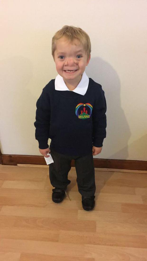 """Cậu bé Pinocchio đời thực"""" sinh ra với chiếc mũi to dị dạng khiến bố mẹ cũng sốc, gây bất ngờ với diện mạo sau ít năm - Ảnh 10."""