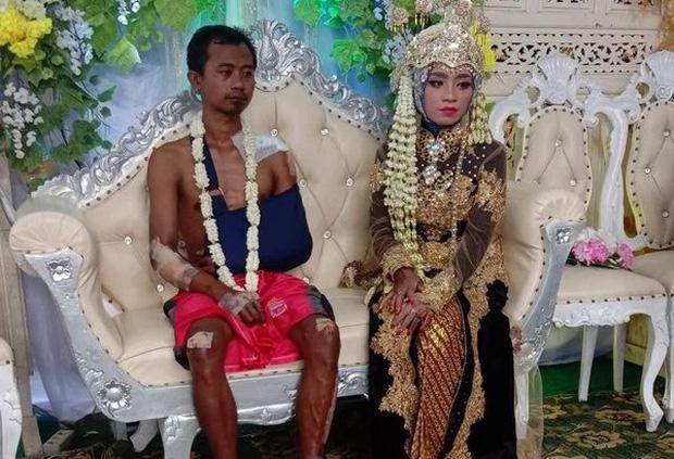 Bức ảnh chú rể mặt buồn thiu, toàn thân đầy thương tích tại đám cưới gây bão MXH, câu chuyện phía sau khiến ai cũng xúc động - Ảnh 2.