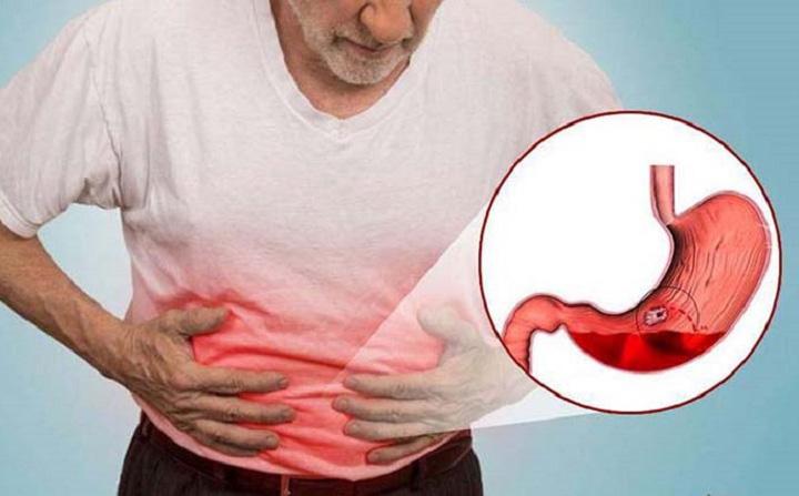 """Để giữ dạ dày không bị """"thủng"""", hãy thay đổi 5 thói quen xấu này càng sớm càng tốt"""