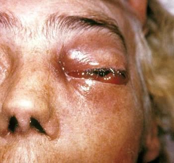 Chuyên gia Ấn Độ: Bệnh nhân mắc Covid-19 có thể bị nhiễm thêm virus hiếm, gây mù lòa, tử vong - Ảnh 3.