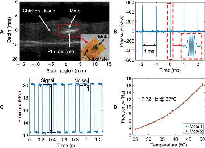 Các nhà khoa học tạo ra chip đơn nhỏ nhất thế giới, nằm gọn trong mũi kim để tiêm vào cơ thể - Ảnh 2.