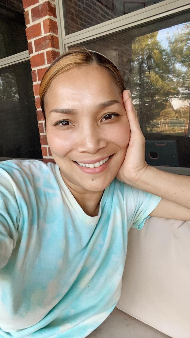 Cận cảnh gương mặt Hồng Ngọc sau 1 năm bị bỏng nặng - Ảnh 1.
