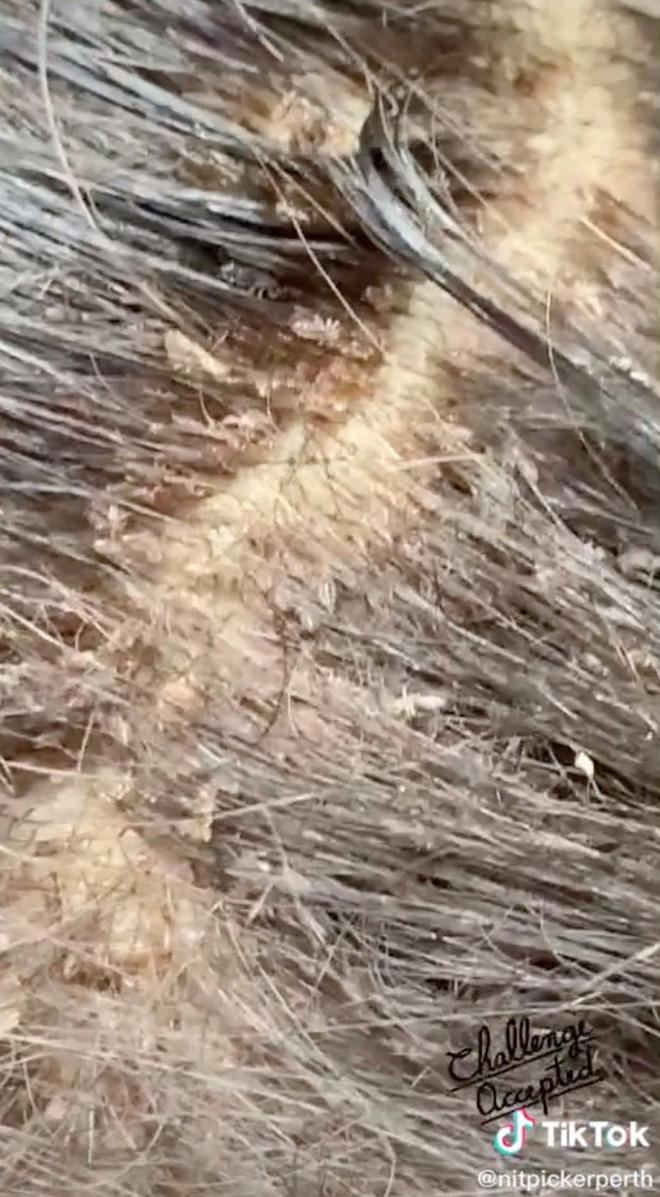 Mang mái tóc bẩn thỉu, lúc nhúc hàng ngàn con chấy đến phòng khám, cô gái khiến chuyên gia thảng thốt vì sốc và kết quả đáng kinh ngạc - Ảnh 1.