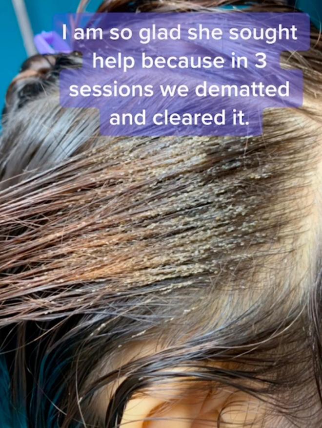 Mang mái tóc bẩn thỉu, lúc nhúc hàng ngàn con chấy đến phòng khám, cô gái khiến chuyên gia thảng thốt vì sốc và kết quả đáng kinh ngạc - Ảnh 4.