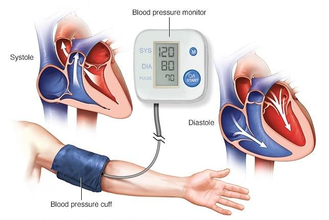 Bệnh nhân tăng huyết áp cần làm gì trong mùa Covid-19 - Ảnh 1.