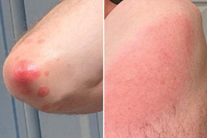 4 tác dụng phụ sau khi tiêm vaccine COVID-19 trên da hay gặp nhất: Có đáng lo ngại không? - Ảnh 2.