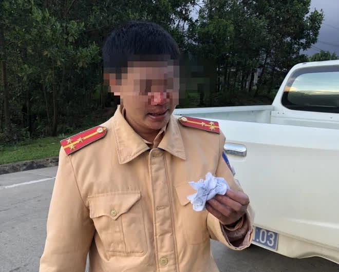 Bắt giam thanh niên trốn khai báo y tế, đánh 2 CSGT bị thương - ảnh 1
