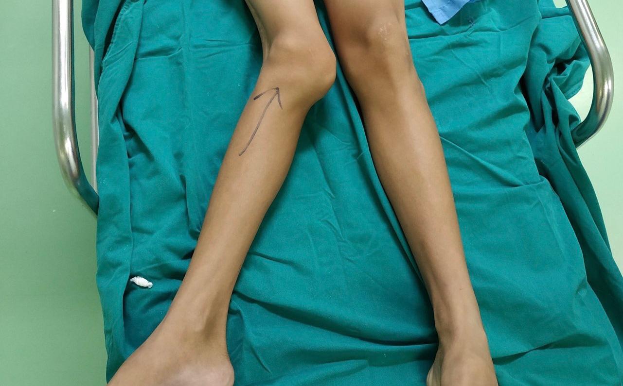 Thiếu niên 14 tuổi bị biến dạng khớp gối nặng do chậm trễ khám lại vì Covid-19