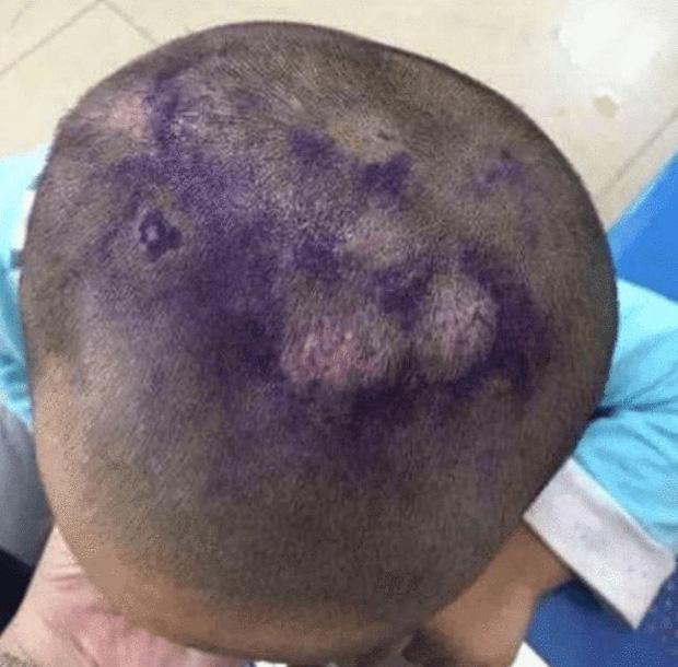 Cháu trai 4 tuổi có thói quen trùm kín đầu lúc ngủ, bà nội khóc ngất khi biết nguyên nhân từ mẹ kế - Ảnh 4.