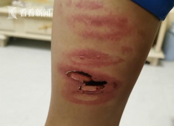 Học sinh lớp 8 bị giáo viên đánh bầm dập, không dám hé răng vì sợ bị trừng trị - Ảnh 2.