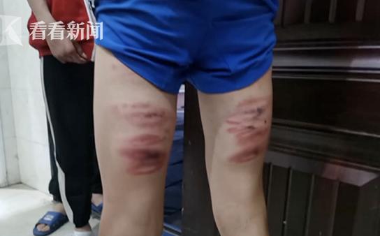 """Học sinh lớp 8 bị giáo viên đánh bầm dập, không dám hé răng vì sợ bị """"trừng trị"""""""