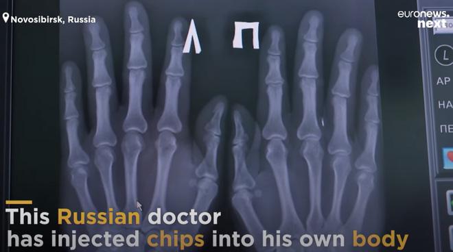 Gặp Doctor Chip của Nga, người có cánh tay cấy hàng loạt chip thẻ ngân hàng, thẻ công việc, thông tin cá nhân - Ảnh 1.