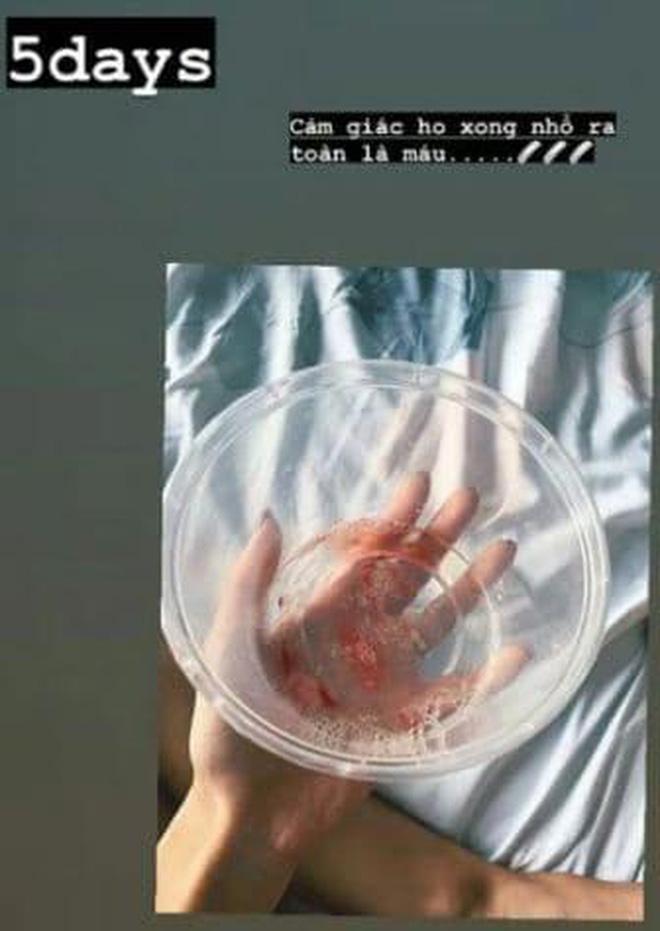 Khả Ngân ho ra máu, tay chân gầy rộc chằng chịt kim tiêm trong viện, chuyện gì đây? - Ảnh 3.