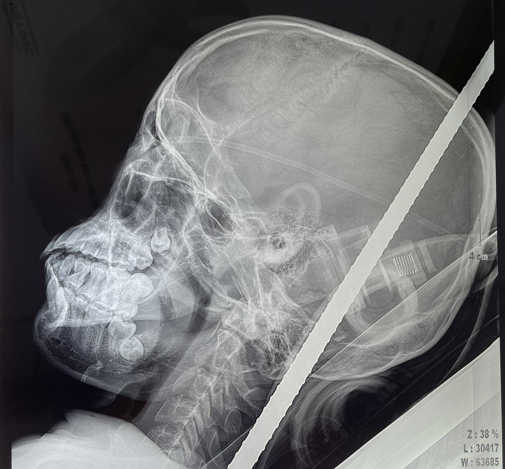 Rơi tự do từ tầng cao xuống, nam thanh niên 18 tuổi bị thanh sắt xuyên thấu từ cổ qua não - Ảnh 1.