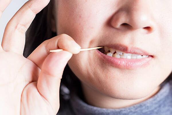 7 thói quen gây hại cho răng ai cũng nên biết - Ảnh 2.