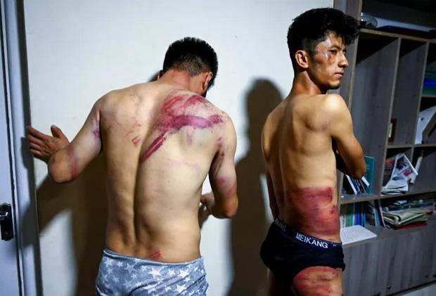Hai phóng viên Afghanistan toàn thân đầy vết thương kinh hoàng do Taliban tra tấn vì đi lấy tin: Tôi cứ nghĩ chúng sẽ giết tôi - Ảnh 2.