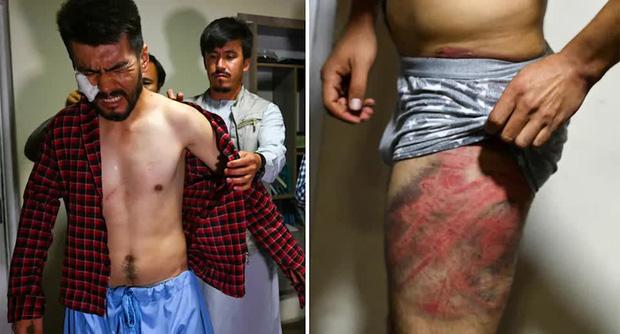 Hai phóng viên Afghanistan toàn thân đầy vết thương kinh hoàng do Taliban tra tấn vì đi lấy tin: Tôi cứ nghĩ chúng sẽ giết tôi - Ảnh 3.