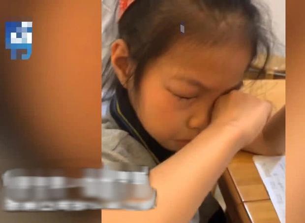 Bé gái dị ứng với bài tập toán: Cứ ngồi vào bàn là mắt sưng húp, ngứa ngáy phát khóc - Ảnh 2.