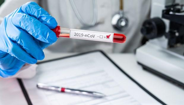 Viêm phổi COVID-19, triệu chứng và những điều cần biết - Ảnh 3.