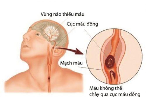 Mắc COVID-19 và nguy cơ đột quỵ não cấp - Ảnh 1.