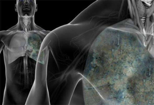Ung thư phổi không đáng sợ nếu biết rõ nguyên nhân và cách phòng ngừa - Ảnh 2.