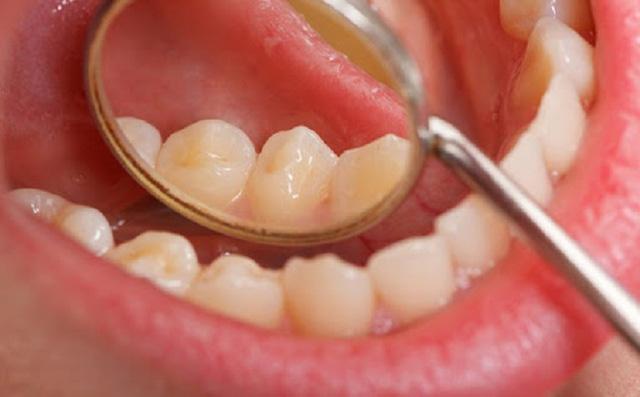 Các yếu tố nguy cơ gây ung thư miệng - Ảnh 3.