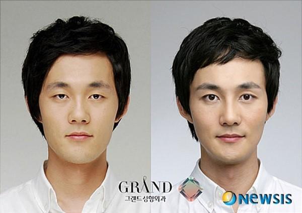 Loạt ảnh những gương mặt hoàn hảo sau phẫu thuật thẩm mỹ 8