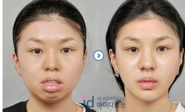 Loạt ảnh những gương mặt hoàn hảo sau phẫu thuật thẩm mỹ 9