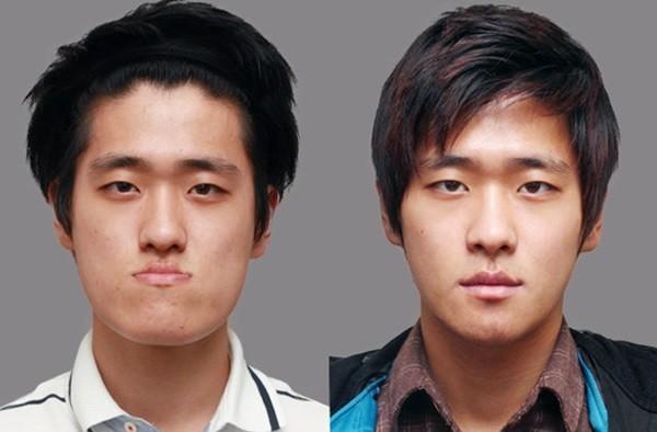 Loạt ảnh những gương mặt hoàn hảo sau phẫu thuật thẩm mỹ 10