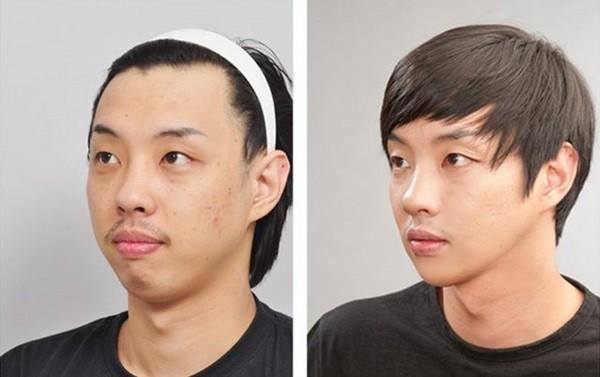 Loạt ảnh những gương mặt hoàn hảo sau phẫu thuật thẩm mỹ 11