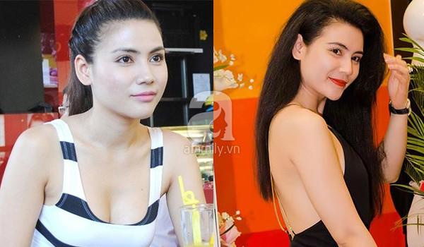 """""""Nghi án"""" diễn viên Quỳnh Hoa cũng theo trào lưu độn cằm 5"""